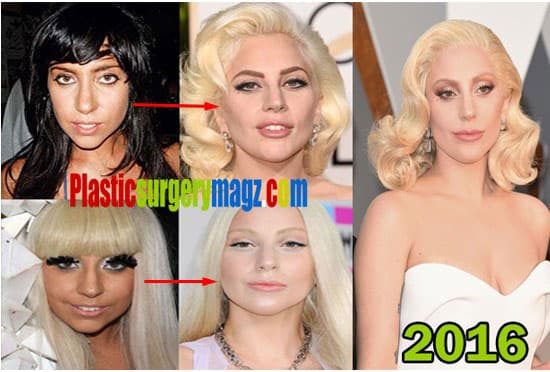 Lady Gaga Before And After Plastic Surgery Pictures photo - 1