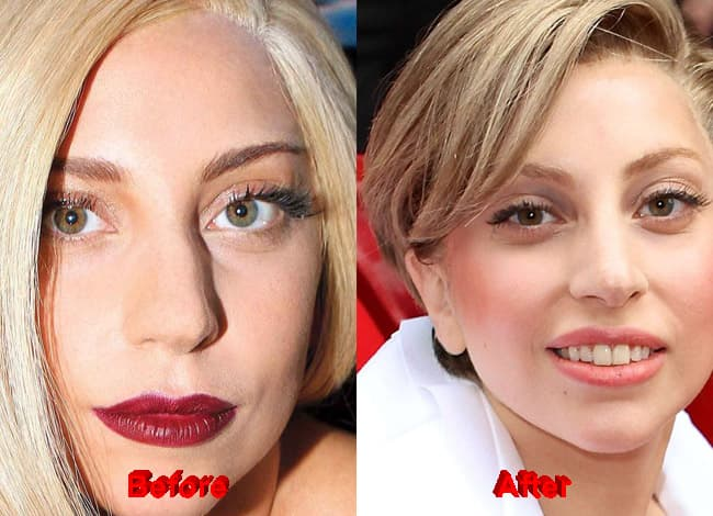 Lady Gaga Before Plastic Surgery photo - 1