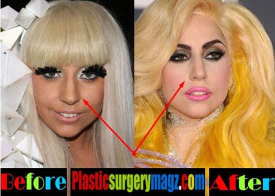 Lady Gaga Plastic Surgery Before And After photo - 1
