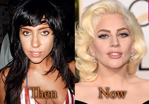 Lady Gaga Plastic Surgery Before And After 2017 photo - 1