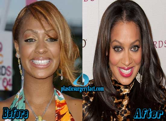 Lala Plastic Surgery Before And After photo - 1