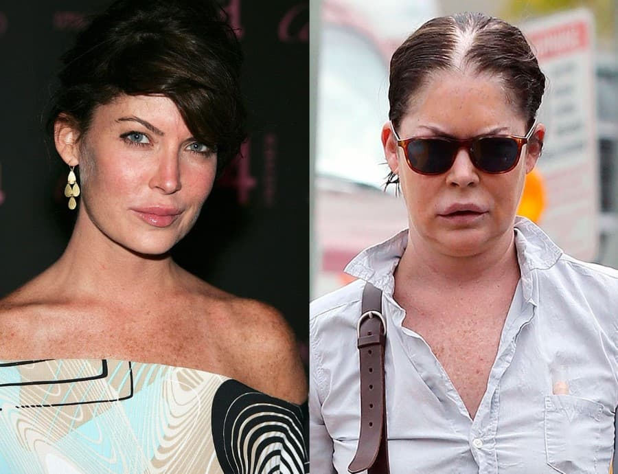 Lara Flynn Boyle Before And After Plastic Surgery photo - 1
