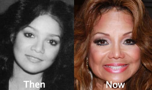 Latoya Jackson Before And After Plastic Surgery photo - 1