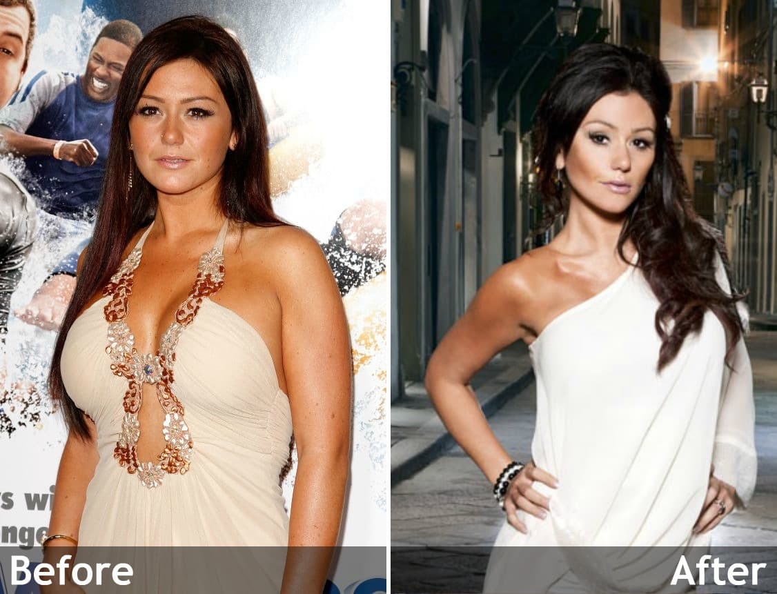 Lauren Graham Plastic Surgery Before And After photo - 1