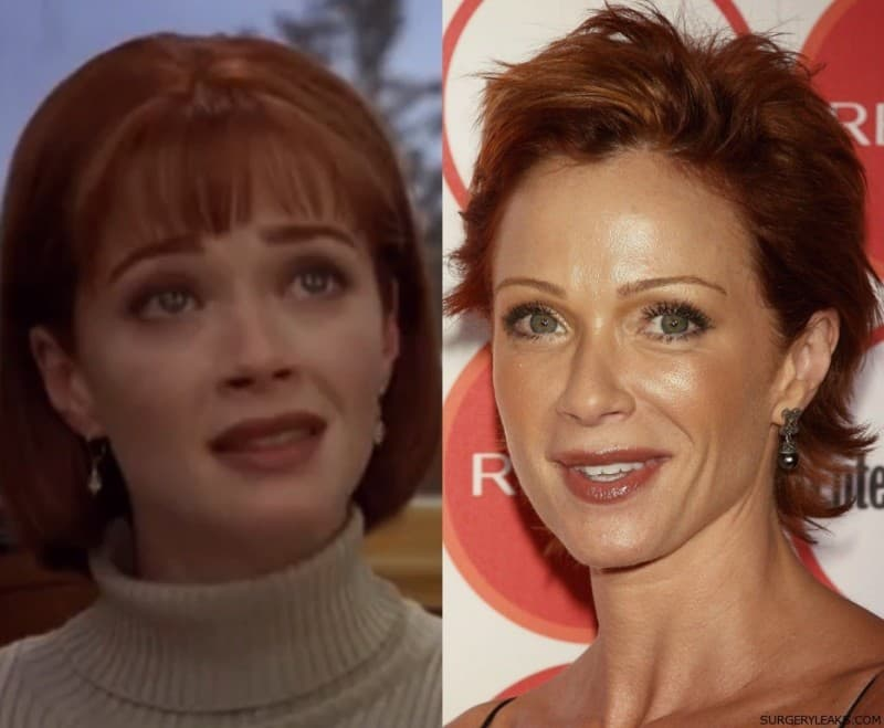 Lauren Holly Plastic Surgery Before After photo - 1