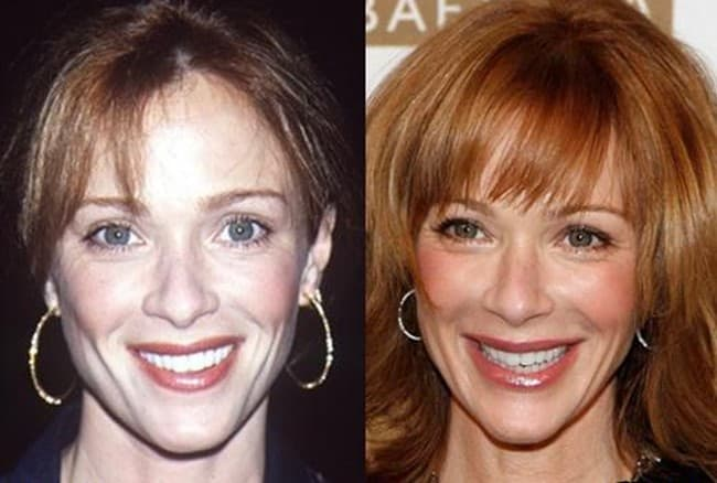 Lauren Holly Plastic Surgery Before And After Face photo - 1
