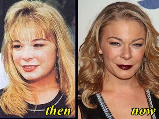 Leann Rimes Before And After Plastic Surgery photo - 1
