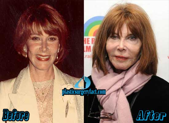Lee Grant Plastic Surgery Before And After photo - 1