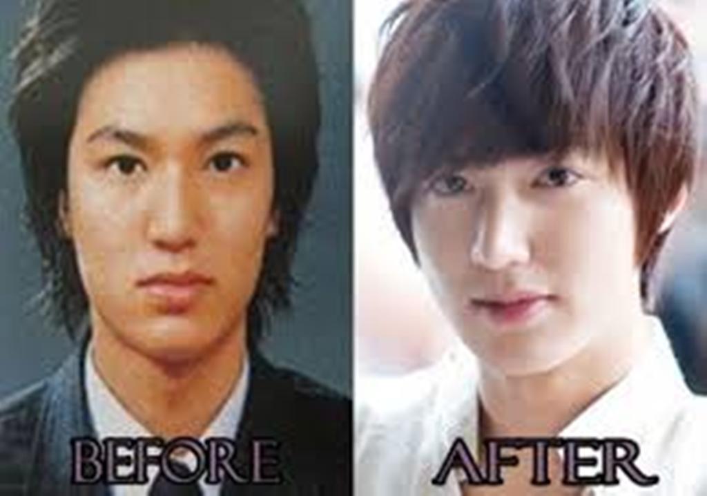 Lee Jong Suk Plastic Surgery Before photo - 1