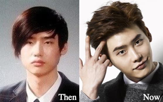 Lee Jong Suk Plastic Surgery Before And After photo - 1