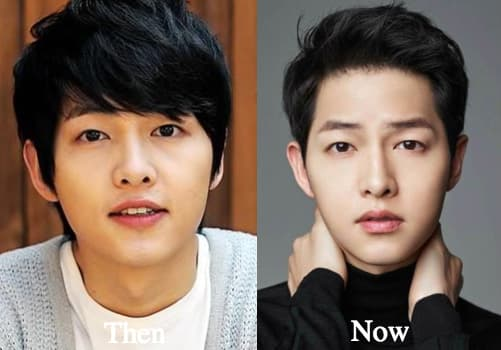 Lee Jun Ki Before Plastic Surgery photo - 1