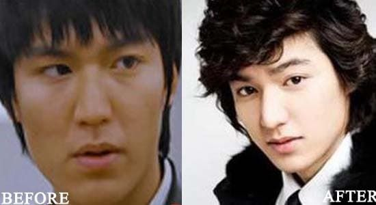 Lee Min Ho Before The Plastic Surgery photo - 1