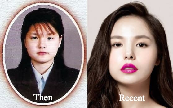 Lee Min Jung Plastic Surgery Before After photo - 1