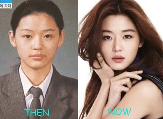 Lee Young Ae Plastic Surgery Before And After photo - 1