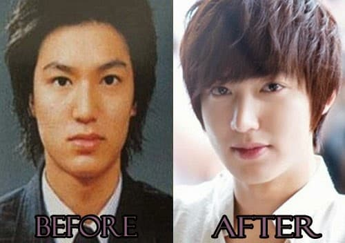 Leeteuk Plastic Surgery Before photo - 1