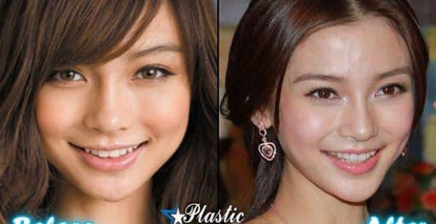 Lela Star Before Plastic Surgery photo - 1