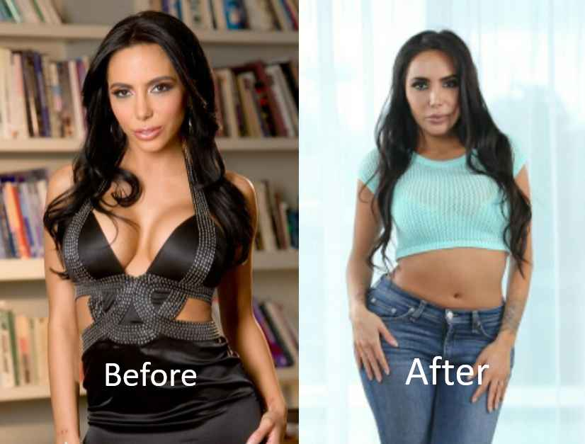 Lela Star Plastic Surgery Before After photo - 1