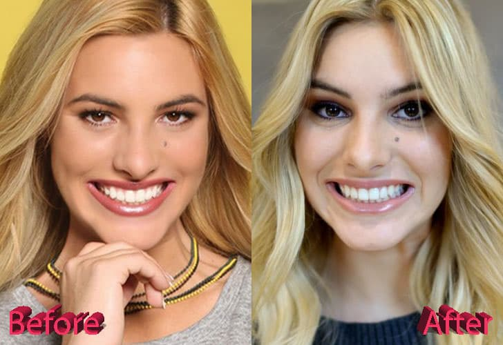 Lele Pons Before And After Plastic Surgery photo - 1