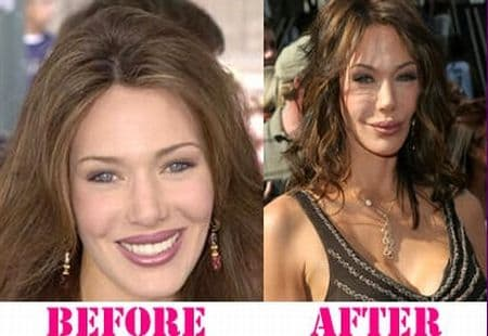 Lesley Visser Plastic Surgery Before And After photo - 1