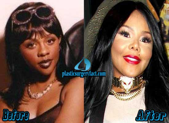 Lil Kim Plastic Surgery Before And After photo - 1