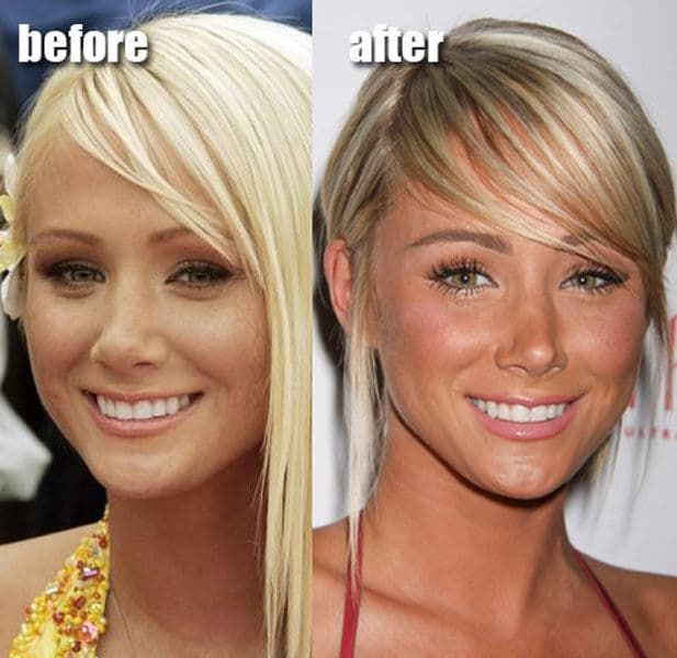 Lindsay Lohan Plastic Surgery Before After photo - 1