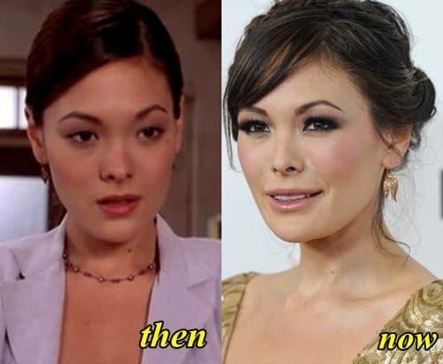 Lindsay Price Plastic Surgery Before After photo - 1