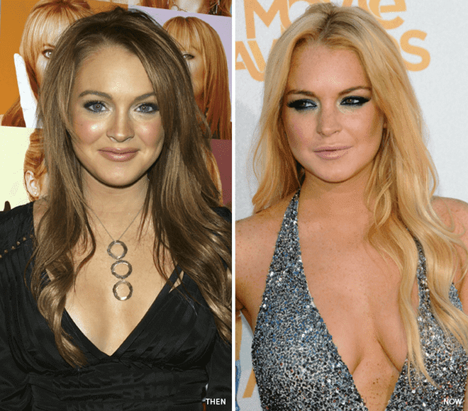 Lindsey Lohan Plastic Surgery Before And After photo - 1