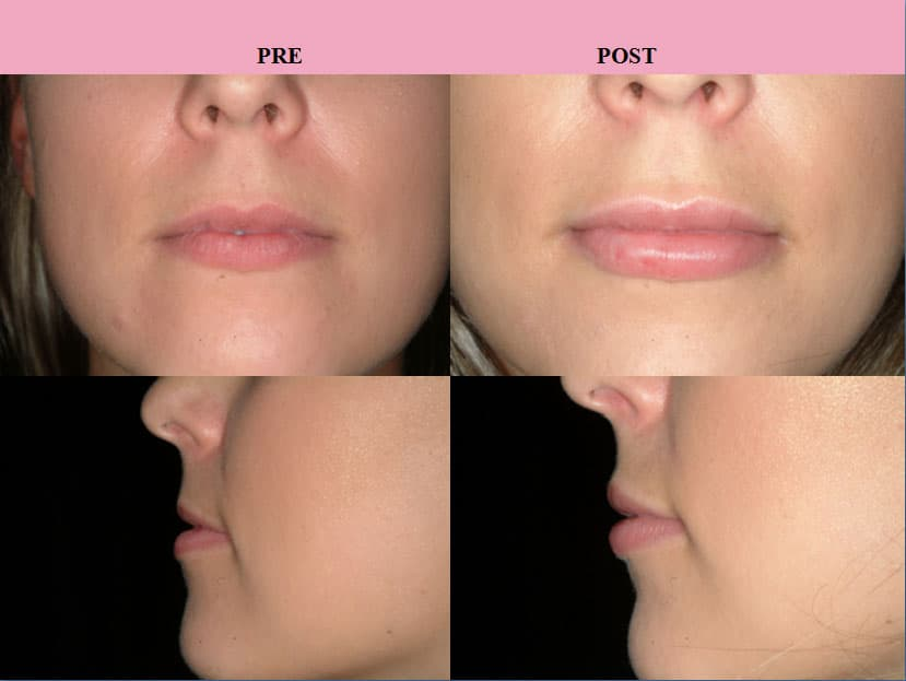 Lip Reduction Plastic Surgery Before And After photo - 1