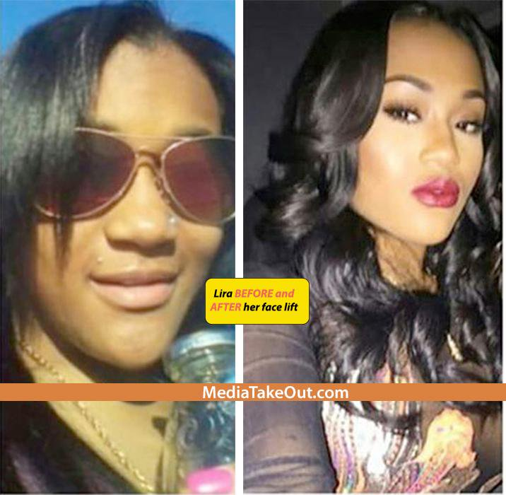Lira Galore Before Plastic Surgery photo - 1