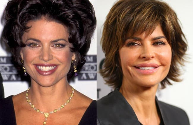 Lisa Rinna Plastic Surgery Before After photo - 1