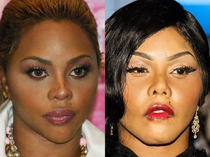 Little Kim Before And After Plastic Surgery photo - 1