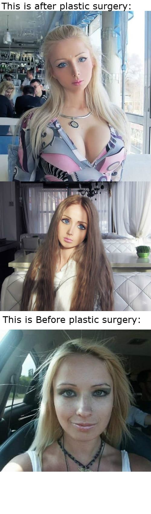 Living Barbie Before And After Plastic Surgery photo - 1
