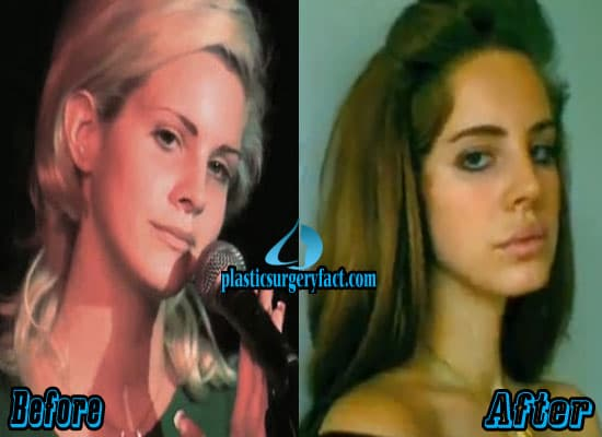 Lizzy Plastic Surgery Before And After photo - 1