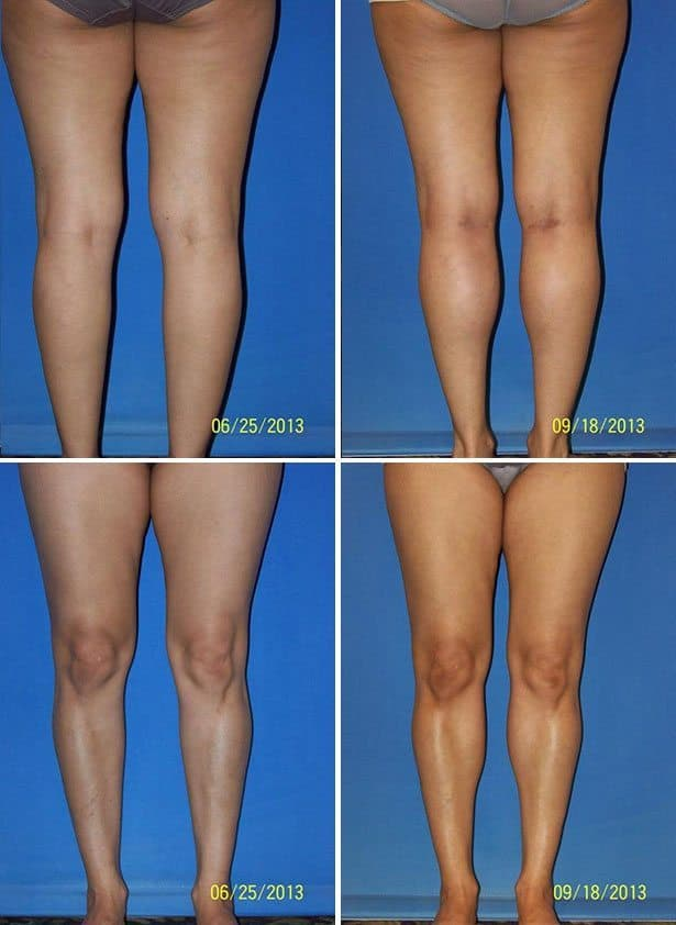 Lower Leg Plastic Surgery Before And After photo - 1
