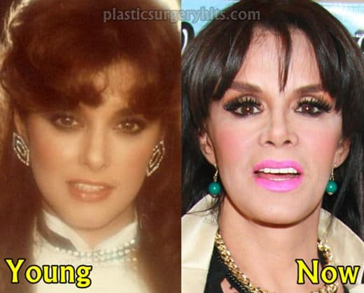 Lucia Mendez Before Plastic Surgery photo - 1
