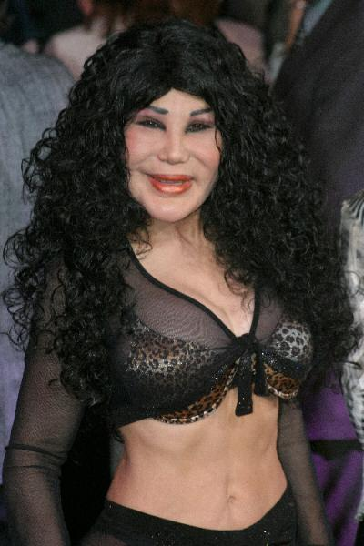 Lyn Before Plastic Surgery photo - 1