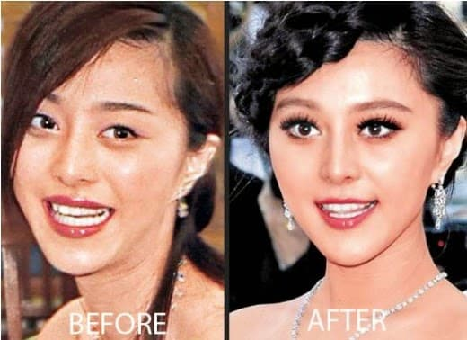 Lynn Hung Plastic Surgery Before And After photo - 1