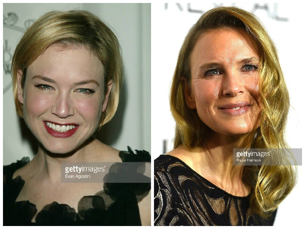 Madonna Plastic Surgery Before After photo - 1