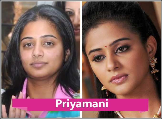 Malayalam Actress Plastic Surgery Before And After photo - 1