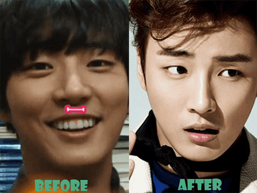 Male Actor Plastic Surgery Before After photo - 1