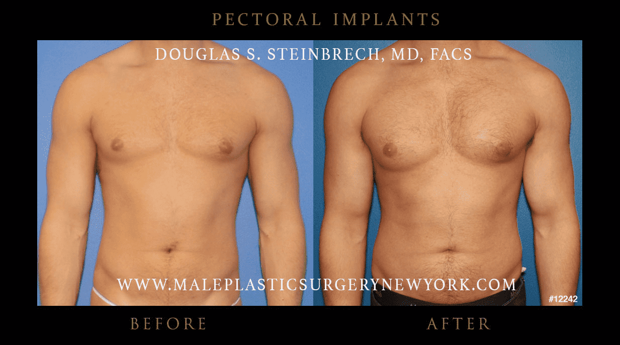 Male Butt Plastic Surgery Before And After photo - 1