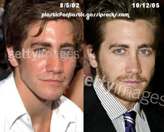 Male Celebs Before And After Plastic Surgery photo - 1