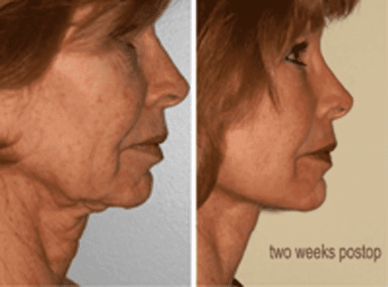 Male Face Plastic Surgery Before After photo - 1