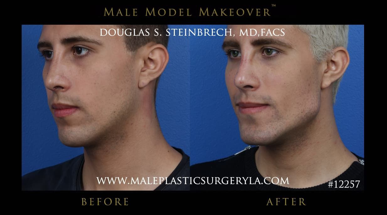 Male Facial Plastic Surgery Before And After photo - 1