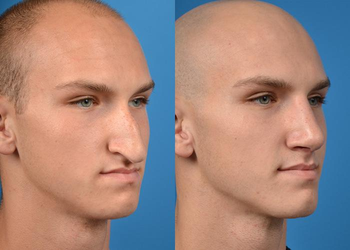 Male Plastic Surgery And Before And After photo - 1