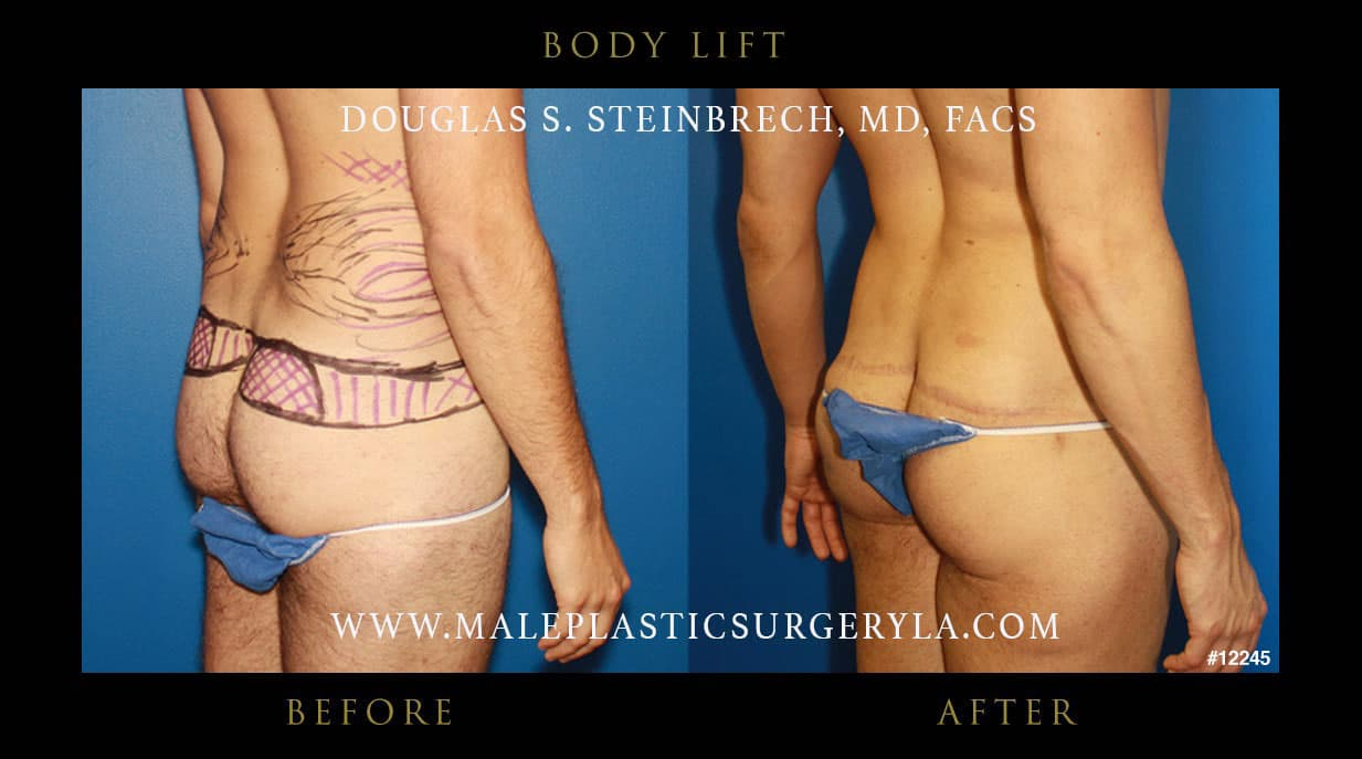 Male Plastic Surgery Before And After photo - 1
