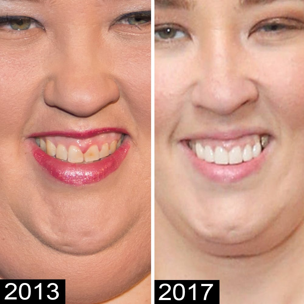 Mama June Plastic Surgery Before And After photo - 1