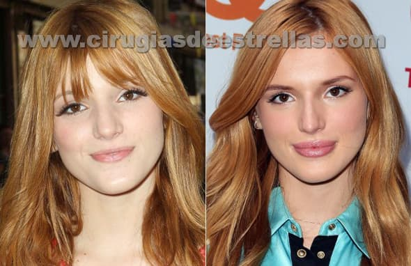 Mancoll Plastic Surgery Before And After photo - 1