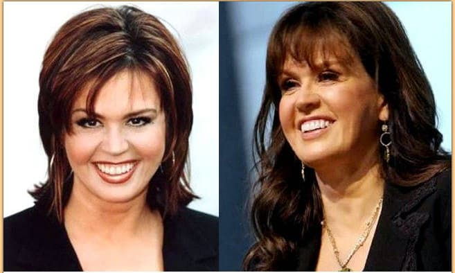 Marie Osmond Plastic Surgery Before And After Photos photo - 1