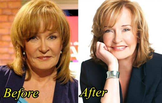 Marilyn Dennis Before Plastic Surgery photo - 1